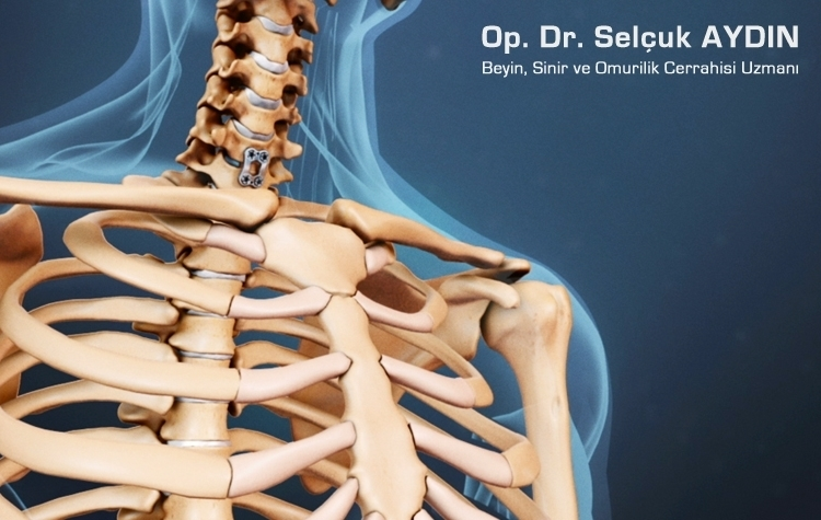 Kaklo stuburo stenozės operacija