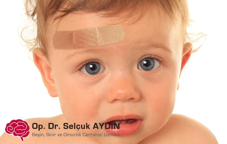 Dėmesys vaikų galvos traumoms