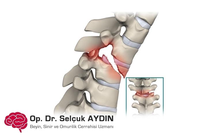 Хирургия перелома позвоночника